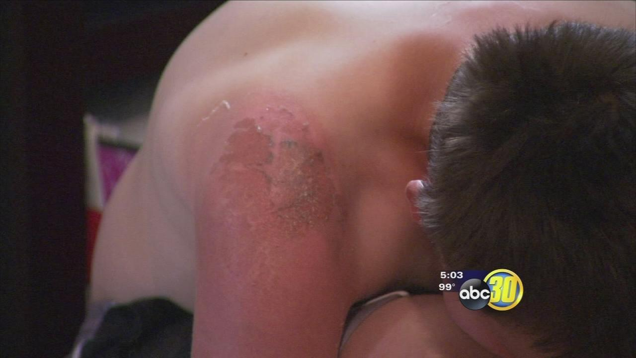 Mother files complaint after Clovis student sunburned