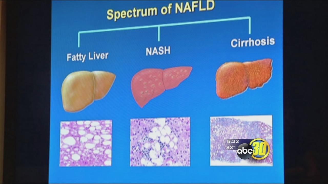 Reversing NASH liver