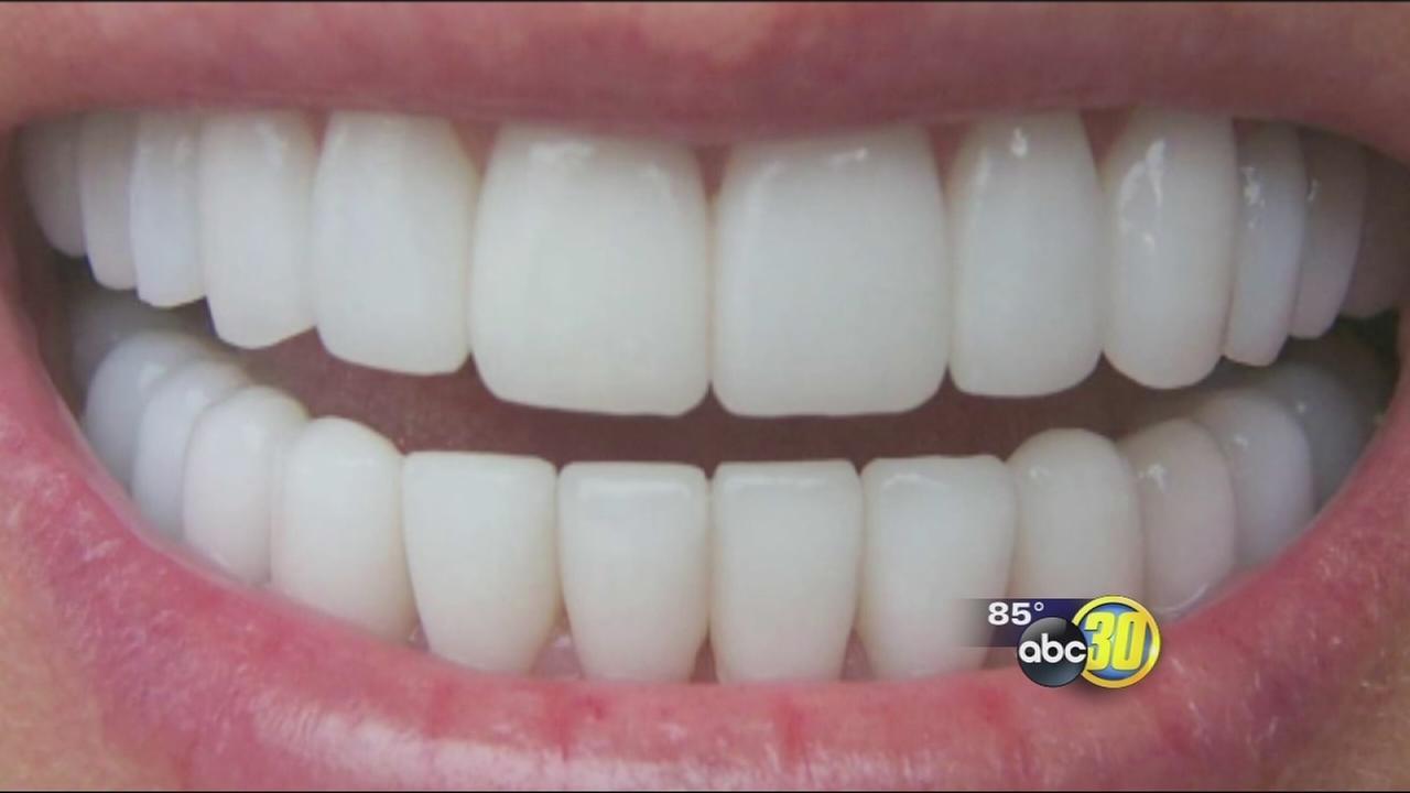 Open wide: dental myths debunked