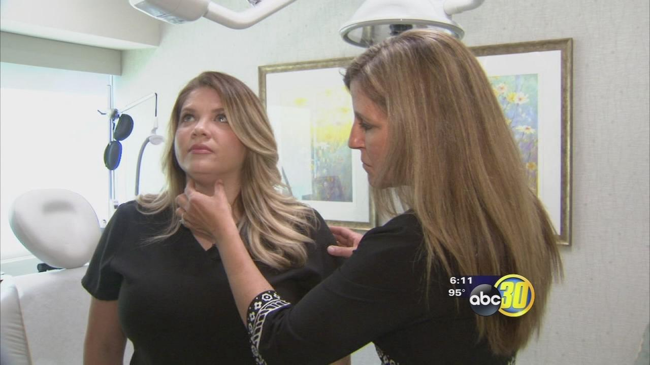 Ditching your double chin with Kybella treatment