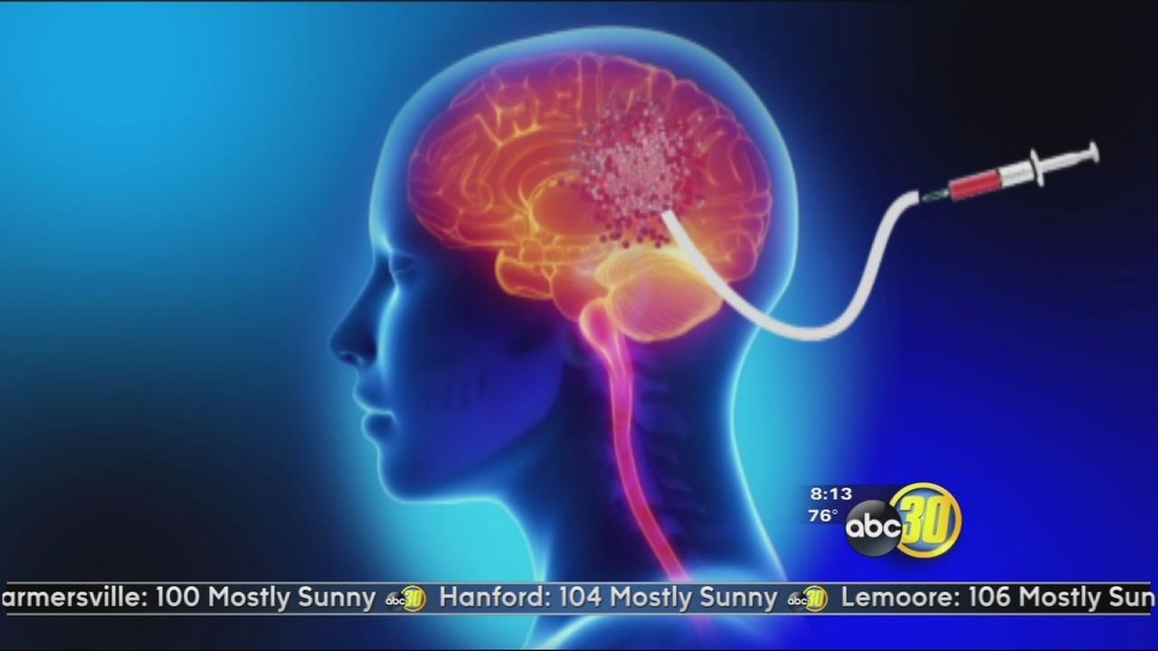Brain Tumor Cath: Glioblastoma GPS
