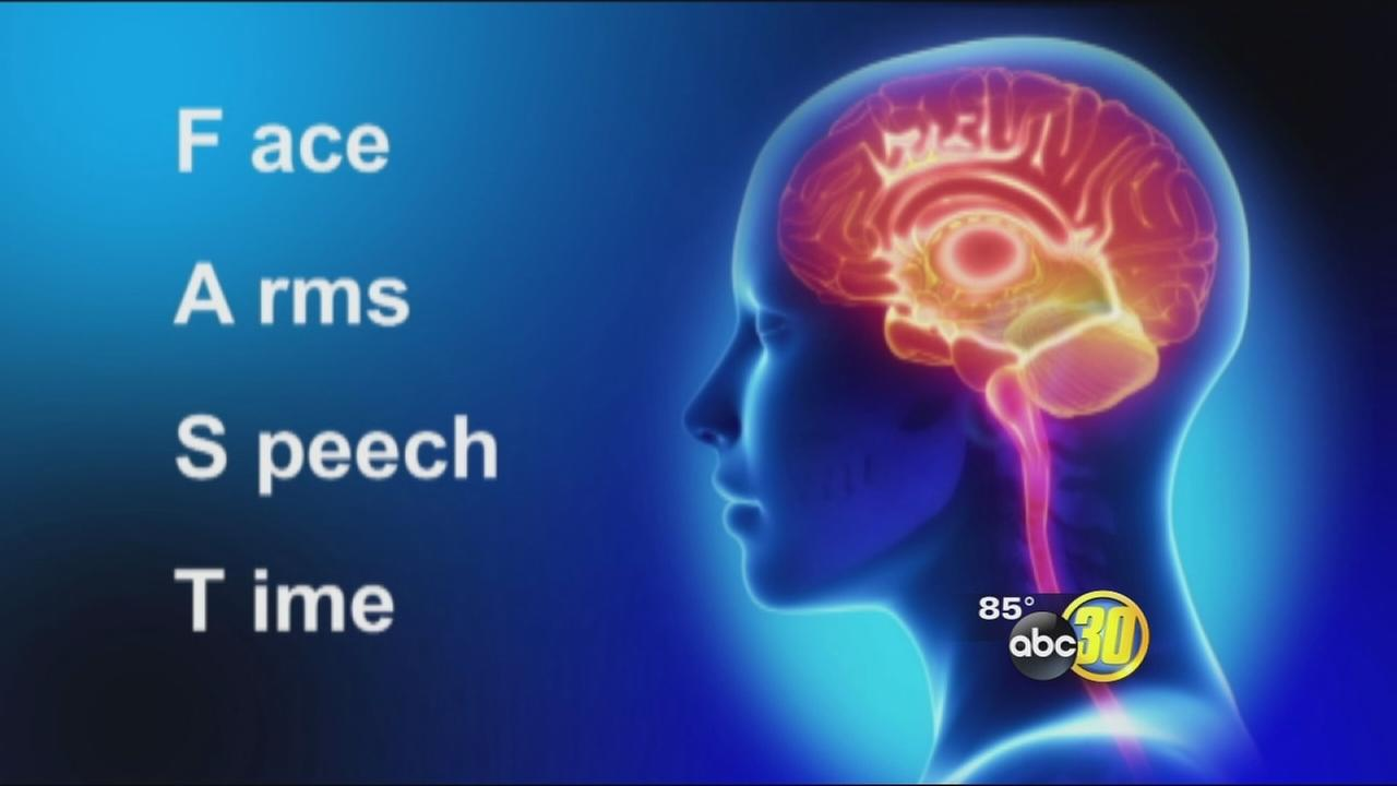 Stroke signs: think fast
