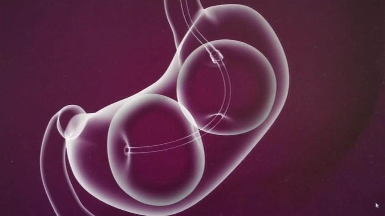 This computer animation demonstrates how balloons can help alter the stomach for weight loss.
