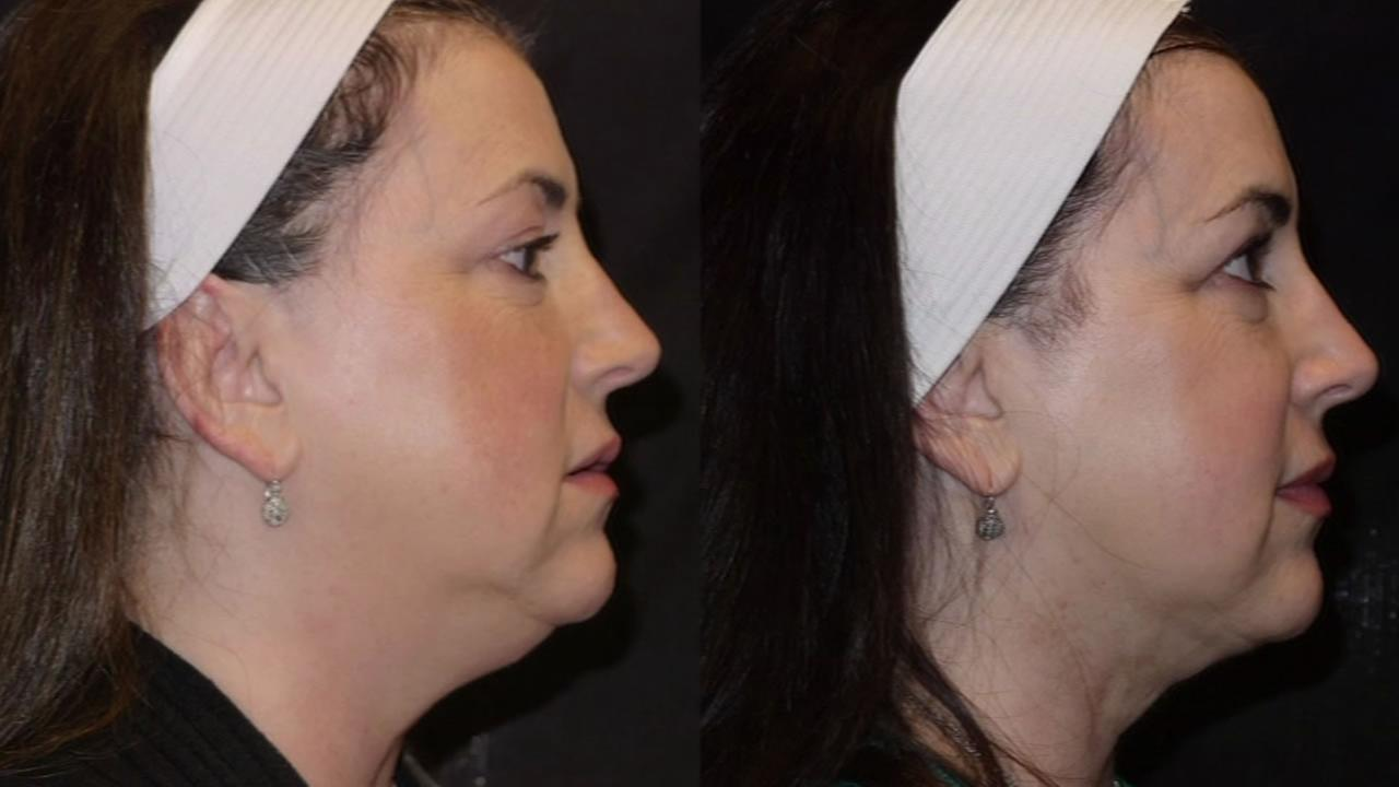 before and after faces showing inside-out neck lift