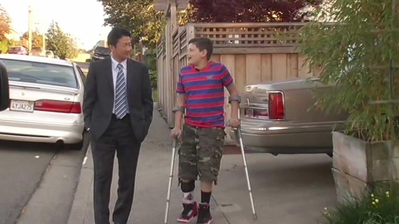 Richmond boy opts for leg amputation