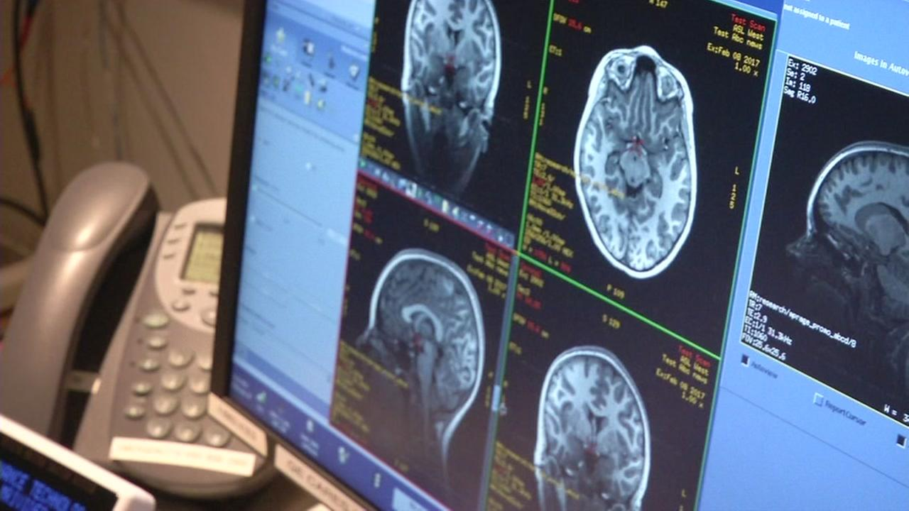 Haley Brown looks at an MRI of her brain at SRI International in Menlo Park, Calif.