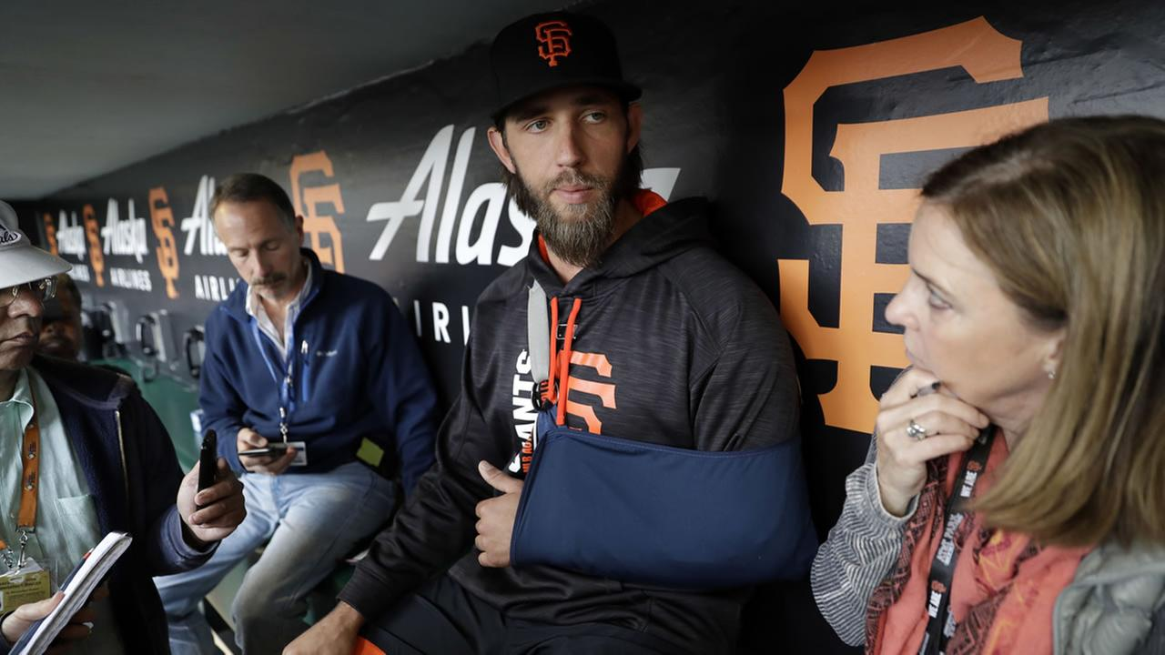 Giants pitcher Madison Bumgarner answers questions about his shoulder injury before a baseball game against the Los Angeles Dodgers, Monday, April 24, 2017, in San Francisco.