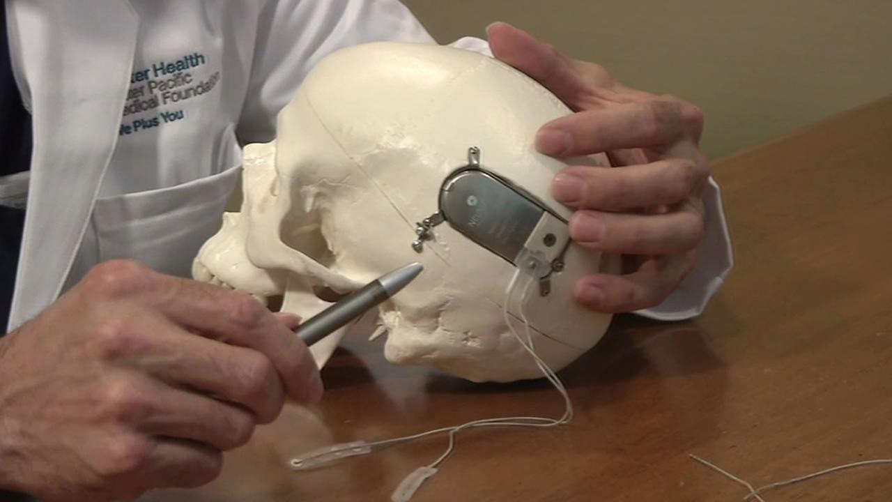 NeuroPace device