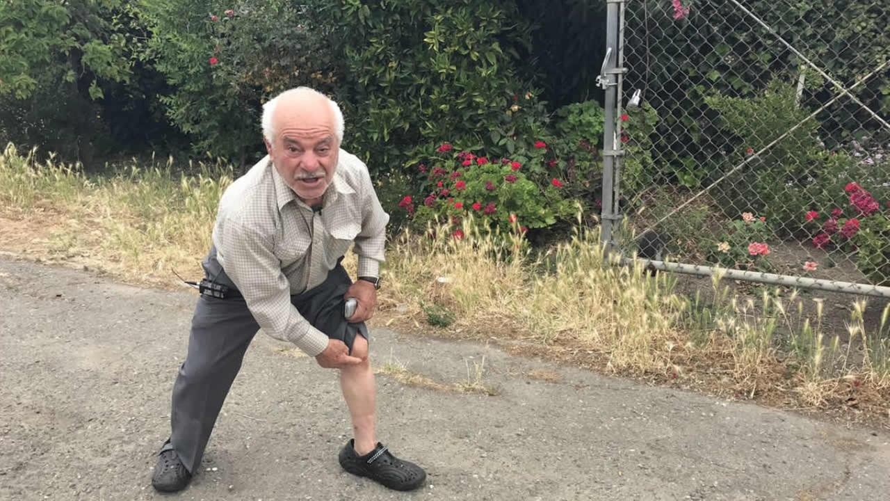 Yousef Youkhaneh, 83, of San Jose, fought off an intruder who attacked his wife in San Jose, Calif. on Sunday, May 29, 2017.
