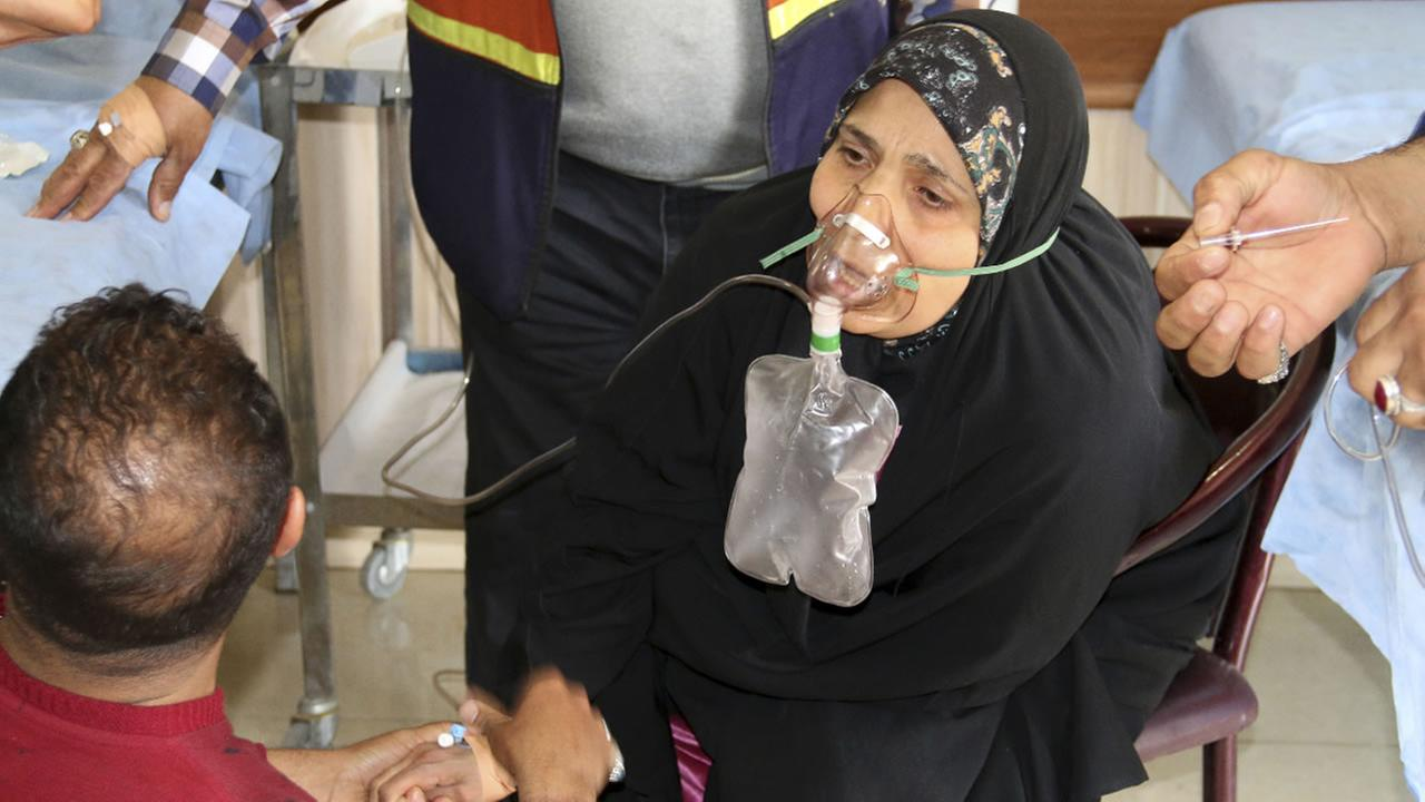 In this Friday, March 11, 2016 file photo, Um Zainab a victim exposed to a chemical attack receives treatment at a hospital in Taza.