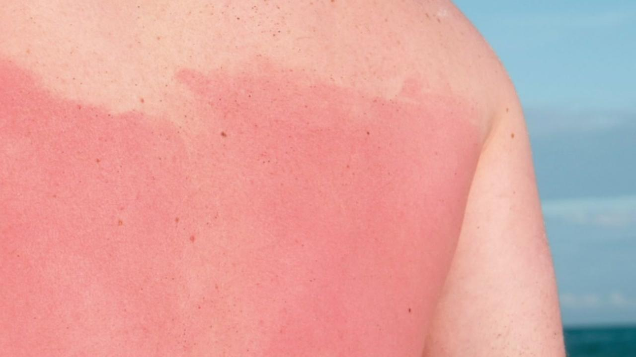This is an undated image of a man with sunburn.