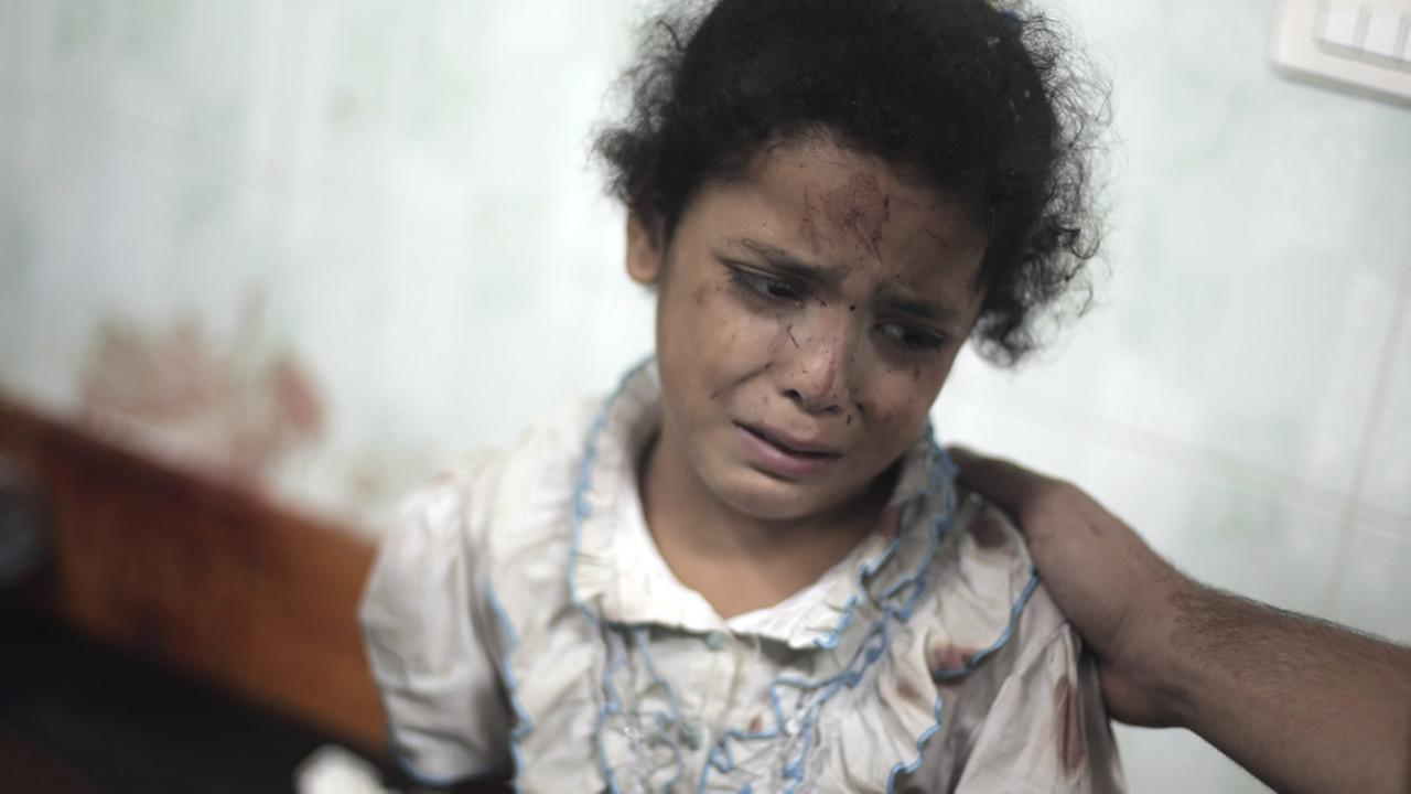 A Palestinian girl cries while receiving treatment for her injuries caused by an Israeli strike at a U.N. school in Jebaliya refugee camp,July 30, 2014. (AP Photo/Khalil Hamra)