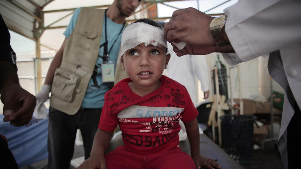 A Palestinian boy injured in an Israeli strike boy receives treatment in the Kuwaiti hospital in Rafah refugee camp, southern Gaza Strip, Aug. 3, 2014. (AP Photo/Khalil Hamra)