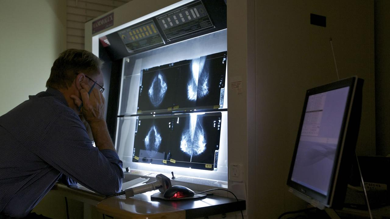 A doctor checks the results of a mammogram test.