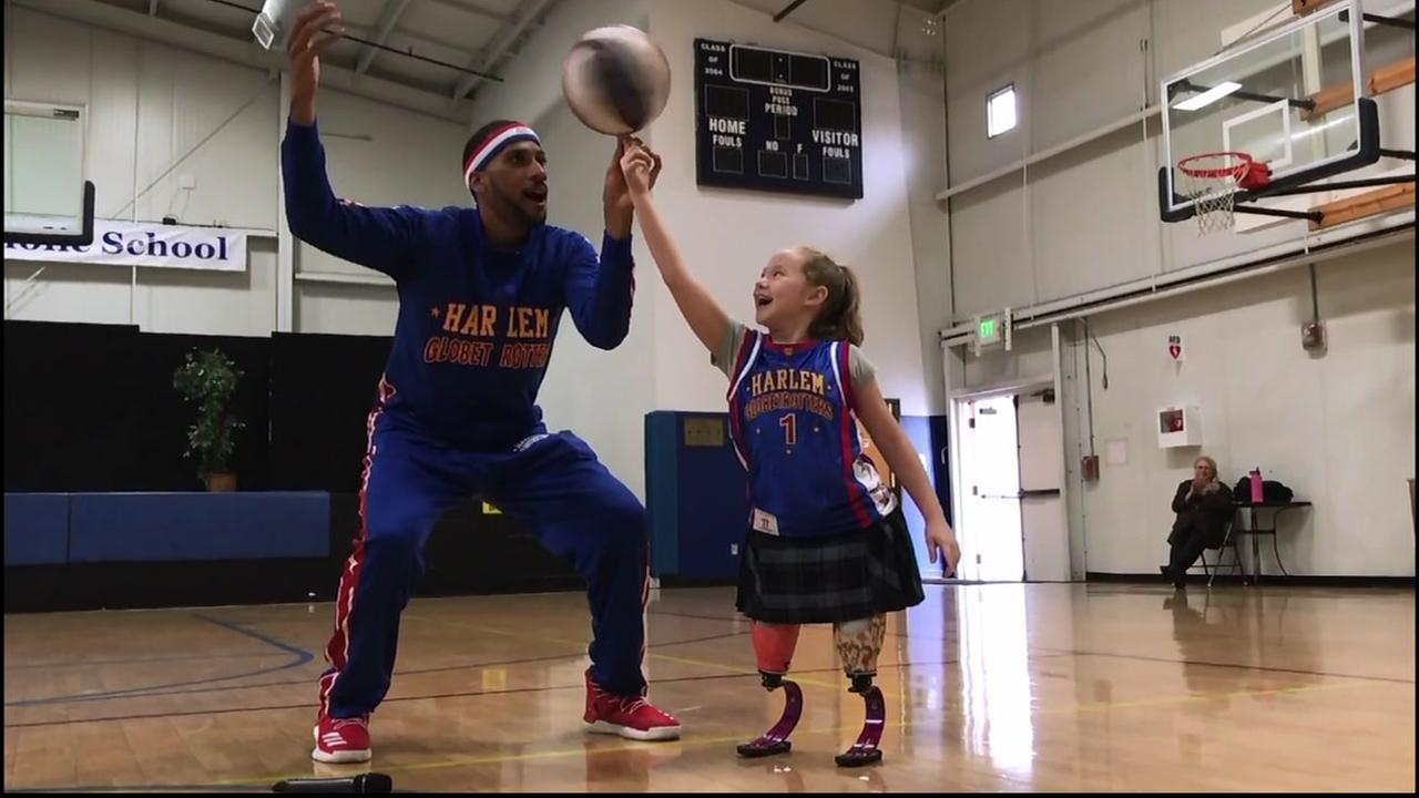 Lilly balances a basketball on her finger with help from a Harlem Globetrotter in Healdsburg, Calif.