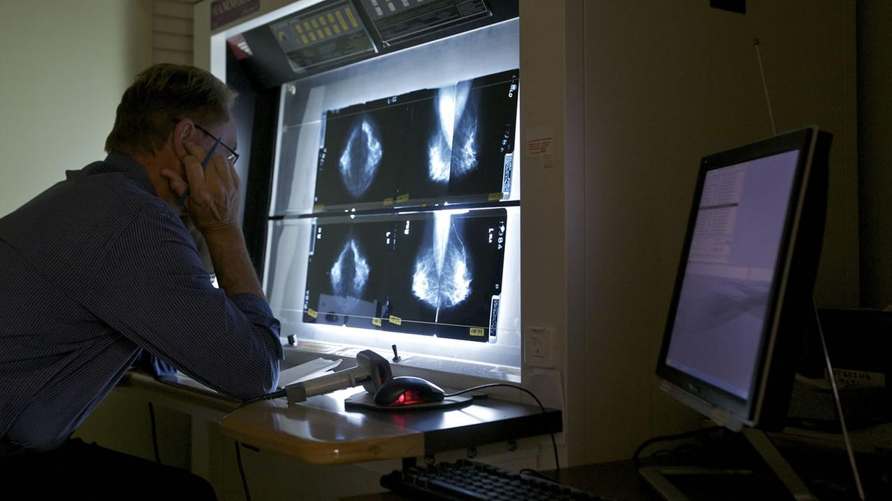 Medical Director Radiologist, Dr. Gerald Iba, checks mammograms at The Elizabeth Center for Cancer Detection in Los Angeles.