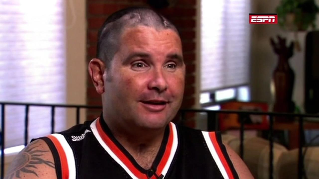 Giants fan Bryan Stow speaks to ESPN for first time since attack