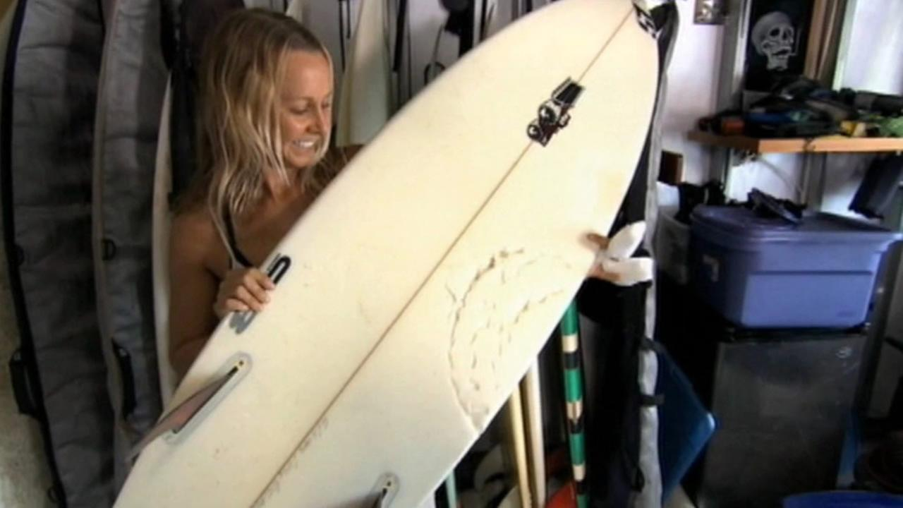 Surfer McKenzie shows off her wounds and board after shark attack in Hawaii.