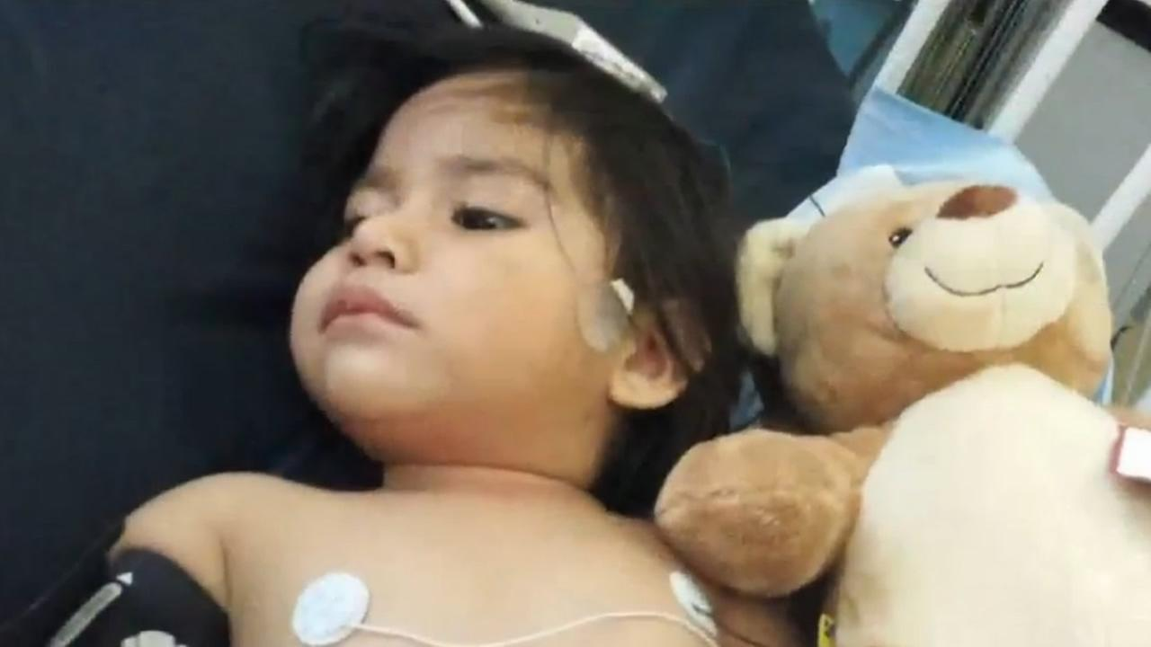 An 18-month-old girl in Fresno had her foot amputated after a lawnmower accident.