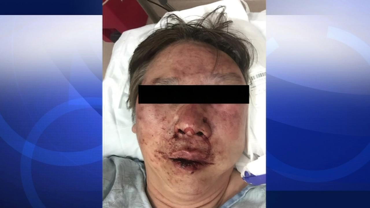 Police say 60-year-old Solomon Yuen was beaten by a passenger over a $36 fare in Daly City, Calif. on Feb. 15, 2015.