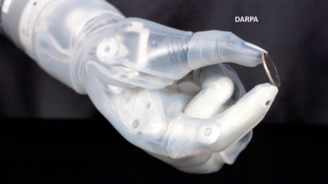 A bionic arm inspired by Star Wars has finally won approval from the FDA.