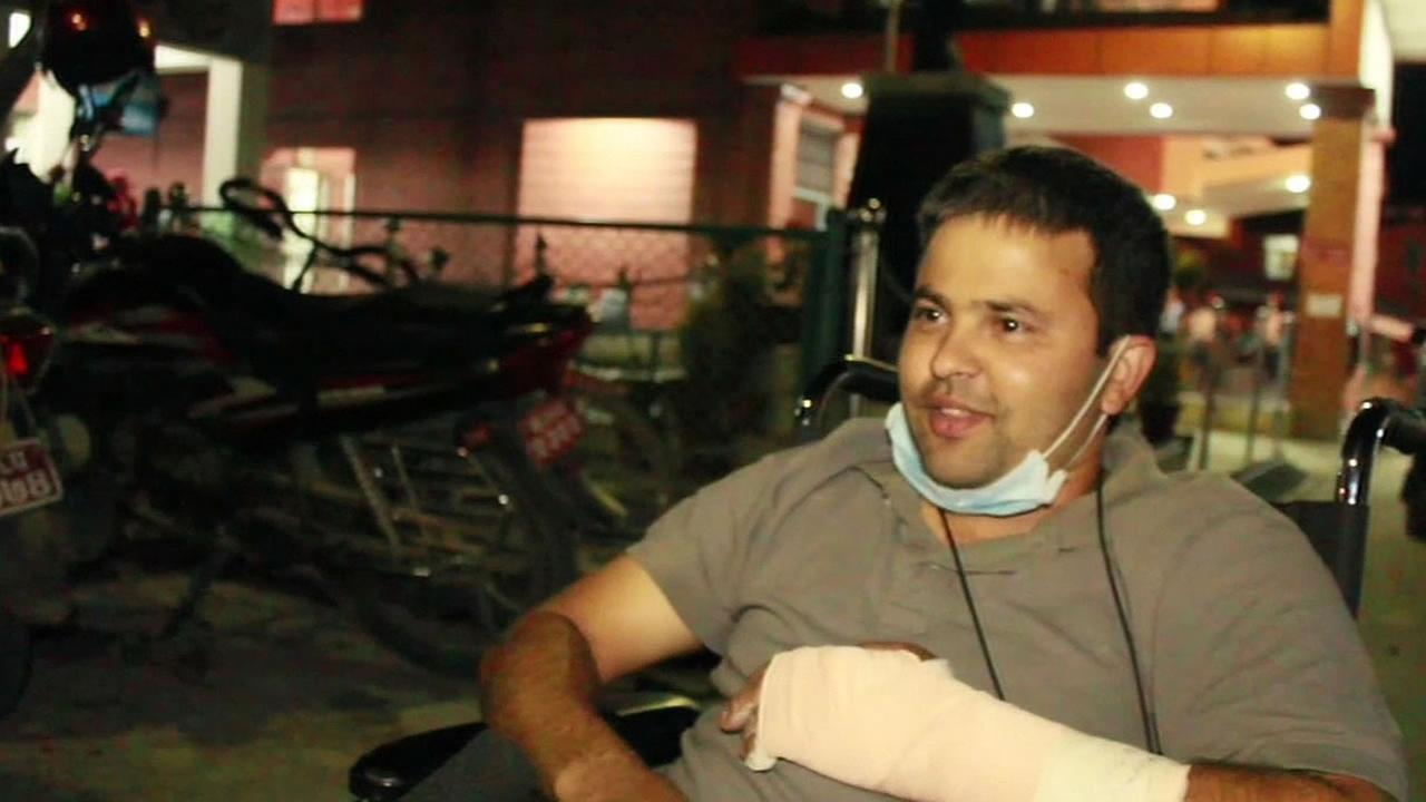 Bishow Bhatta is in Nepal with a broken arm