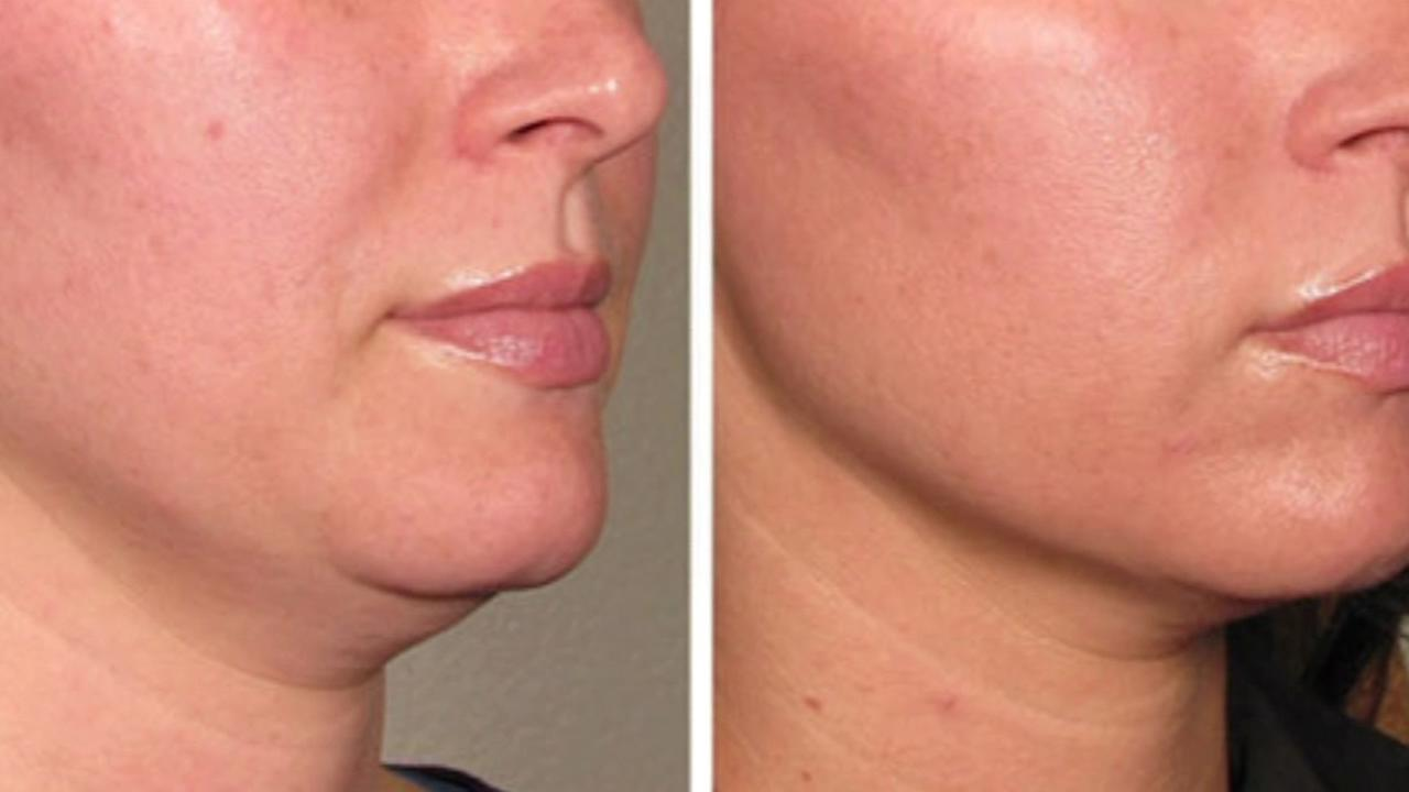 A before and after picture are shown on a woman who underwent the Ultherapy procedure in San Francisco.