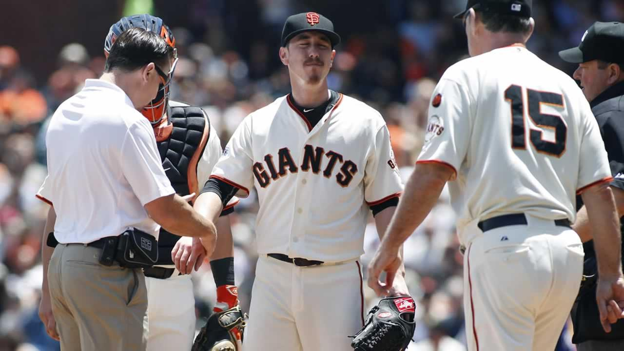 Giants trainer Dave Groeschner checks Tim Lincecums right wrist during the second inning of a baseball game against the Rockies, Saturday, June 27, 2015, in San Francisco.