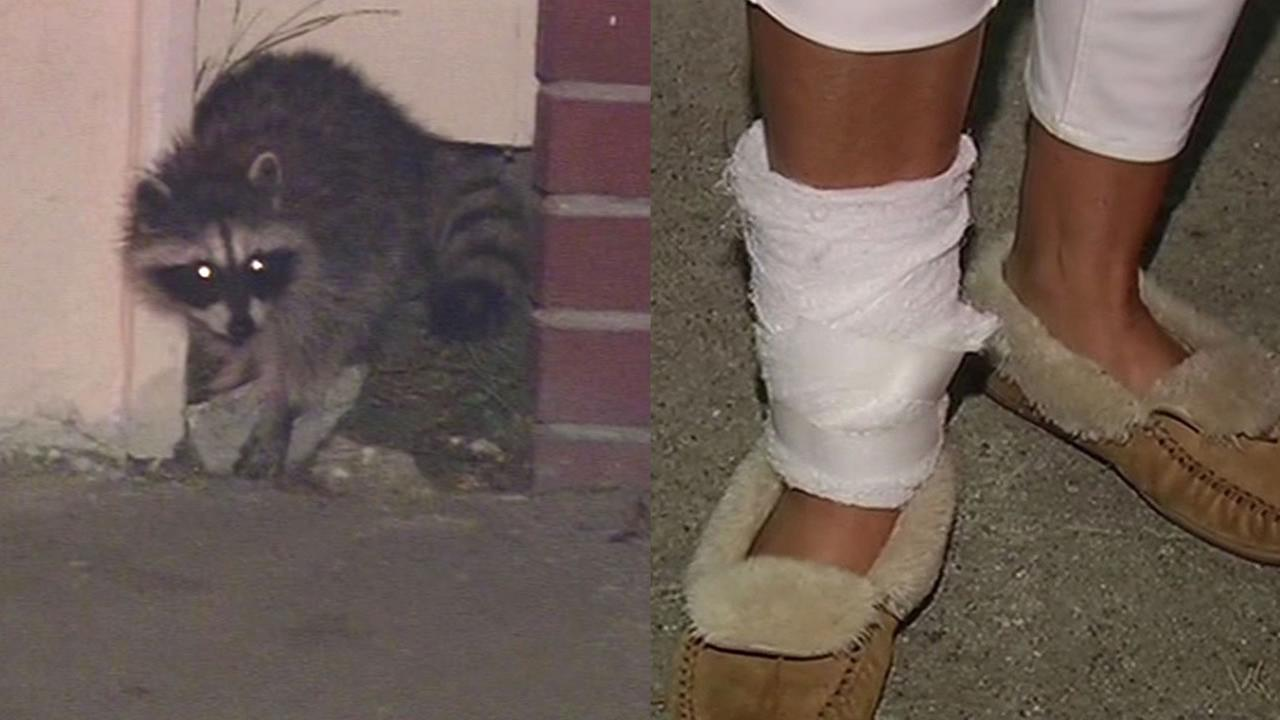 raccoon in San Francisco and a womans leg wrapped up in bandages