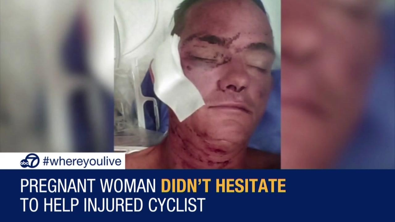 Pregnant woman helps injured cyclist