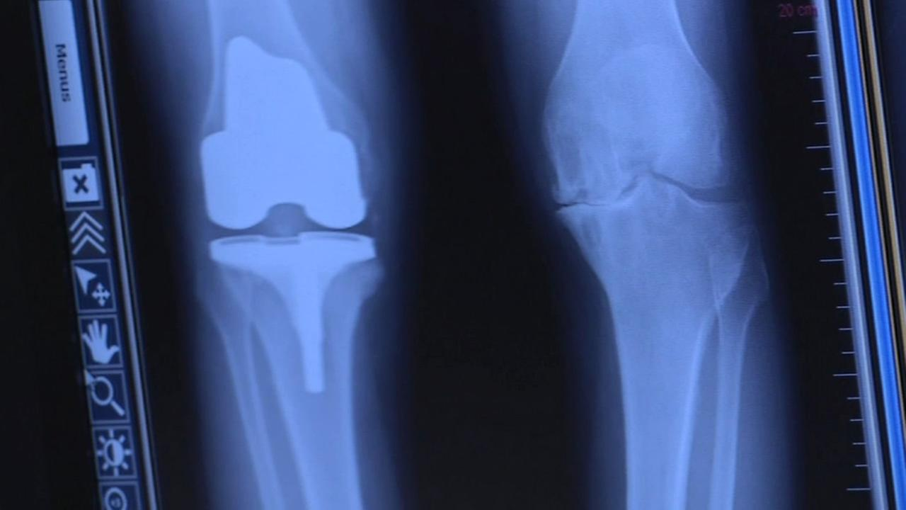 In this undated image, an x-ray of a knee is shown.