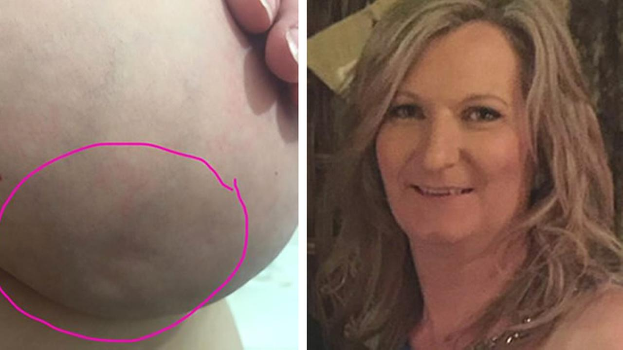 A Facebook post by Kylie Armstrong depicting a breast cancer warning sign has gone viral.