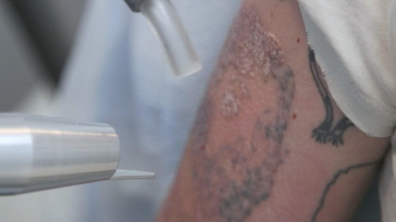 7 On Your Sides Michael Finney and Consumer Reports look into tattoo removal, replacement