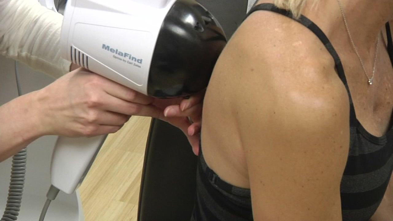 University of California San Francisco hosting annual skin cancer screening clinic