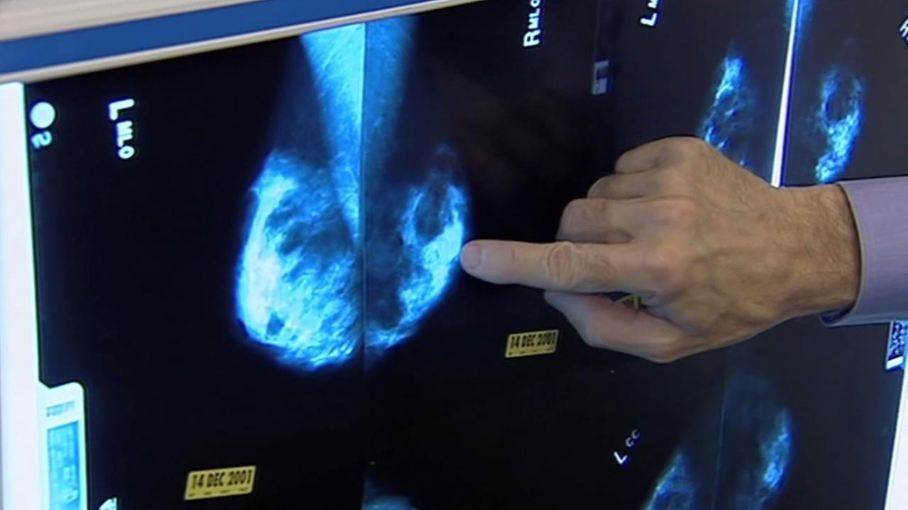 Research out of UCSF finds there is a genetic reason behind Latinas lower risk of breast cancer.