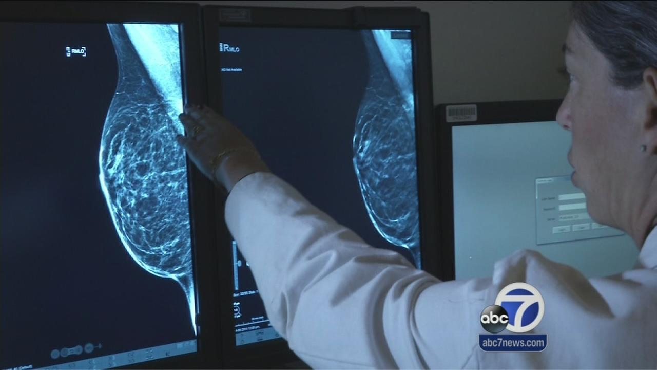 Stanford Hospital introduces 3D breast screening