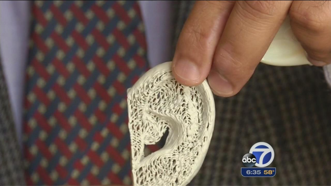 Engineers show off 3D-printed bones at conference