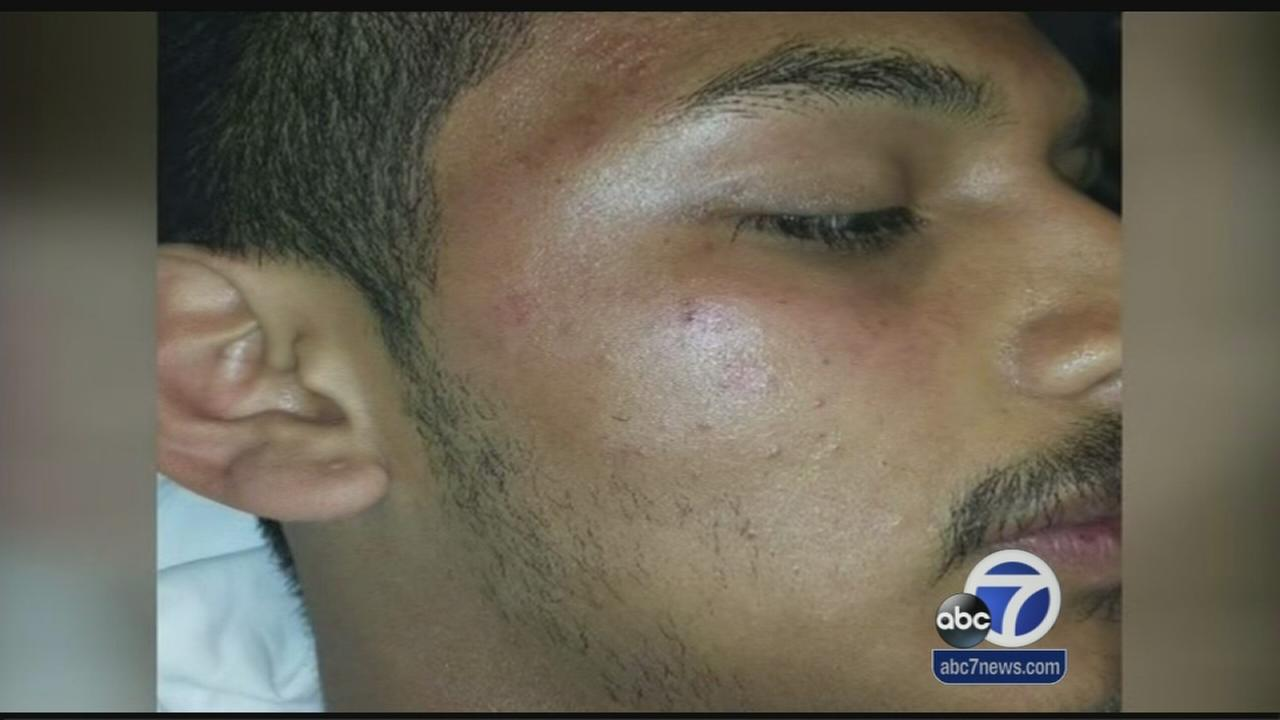Student speaks out after school guard punches him