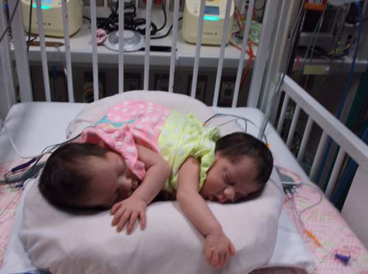 <div class='meta'><div class='origin-logo' data-origin='KTRK'></div><span class='caption-text' data-credit=''>Nick and Chelsea Torres are proud parents of conjoined twins Callie and Carter.</span></div>