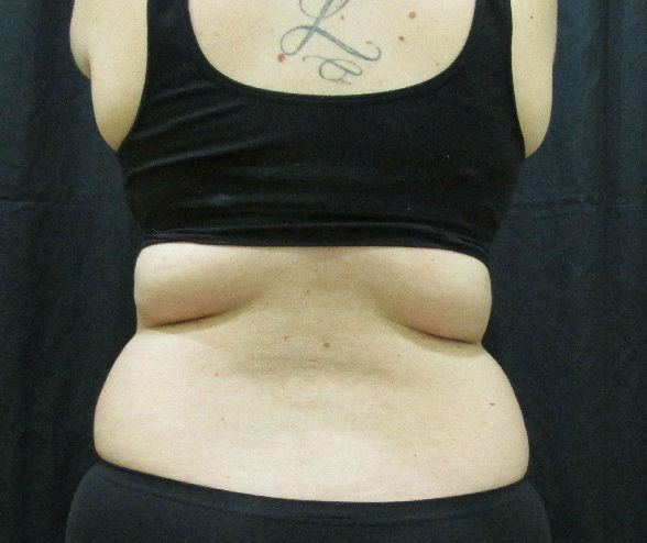 A before image of a K-E Diet participant <span class=meta>ABC Photo</span>