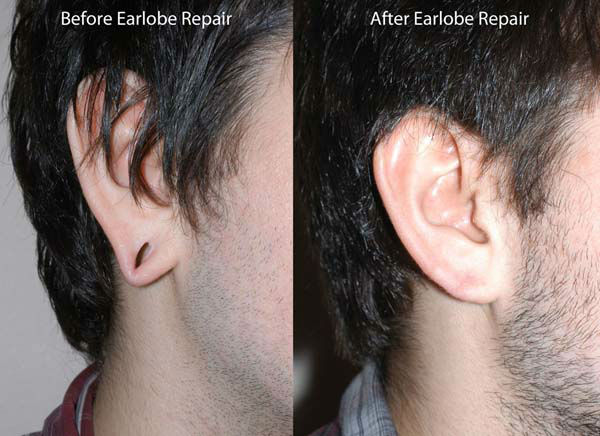 <div class='meta'><div class='origin-logo' data-origin='none'></div><span class='caption-text' data-credit='KTRK Photo/ Dr. Etai Funk, Funk Facial Plastic Surgery'>Before and after photos of patients who have had the earlobe reduction surgery</span></div>