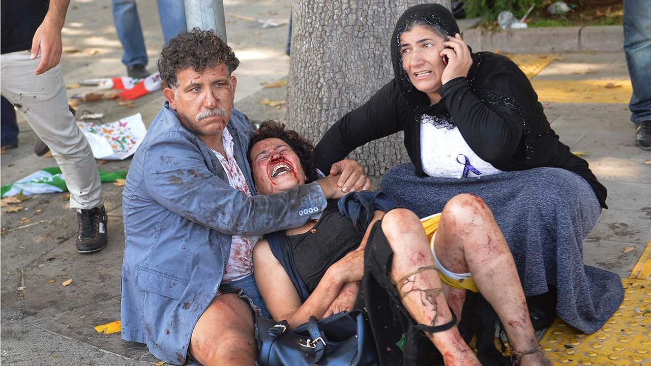 Wounded people wait for help at the site of an explosion in Ankara, Turkey, Saturday, Oct. 10, 2015.
