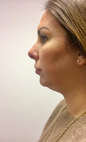 <div class='meta'><div class='origin-logo' data-origin='KTRK'></div><span class='caption-text' data-credit='Kristin Radford'>Kristin before undergoing Kybella treatments.</span></div>