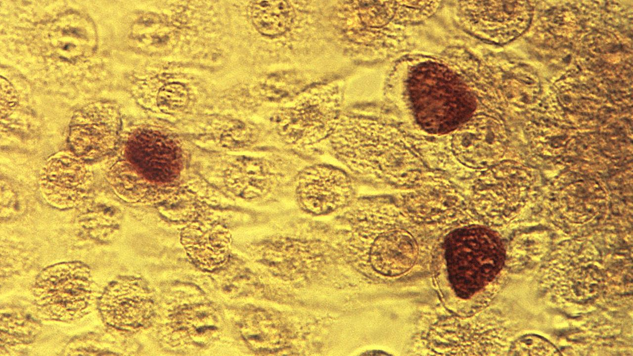 This 1975 microscope image made available by the the Centers for Disease Control and Prevention shows Chlamydia trachomatis bacteria magnified 200X.  (Dr. E. Arum, Dr. N. Jacobs/CD