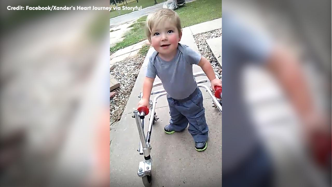 Toddler takes first inspiring steps after surgery.