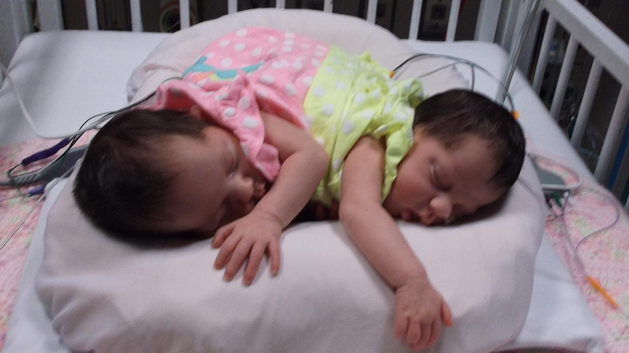 Conjoined twins are headed home from Houston