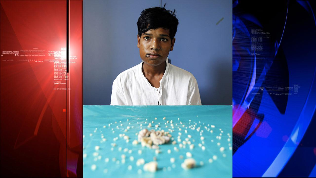 Ashik Gavai, 17, sits near 232 tooth-like structures removed from his jaw after undergoing surgery in Mumbai, India