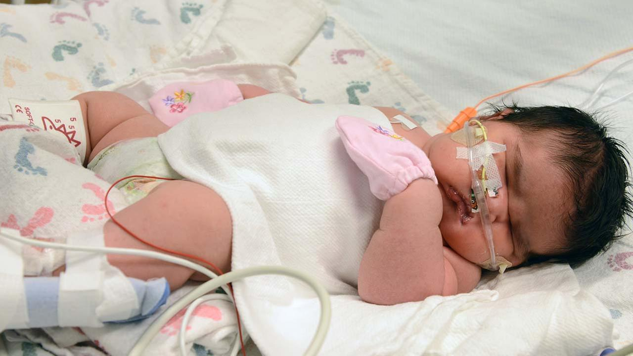 Mia Yasmin Garcia shortly after birth Dec. 2, 2014 she was born by cesarean section in Alamosa, Colorado Monday, weighing 13 pounds, 13 ounces