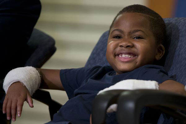 <div class='meta'><div class='origin-logo' data-origin='none'></div><span class='caption-text' data-credit='AP Photo/ Matt Rourke'>Double-hand transplant recipient eight-year-old Zion Harvey smiles during a news conference Tuesday, July 28, 2015, at The Children?s Hospital of Philadelphia</span></div>
