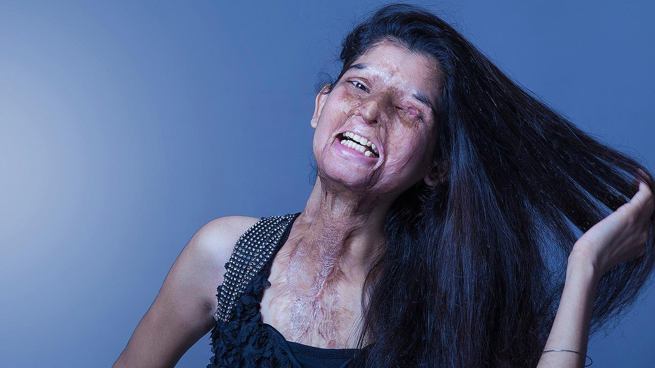 In this Aug. 4, 2014 photo provided by Rahul Saharan, Indian acid attack victim Ritu poses during a fashion photo shoot in New Delhi, India